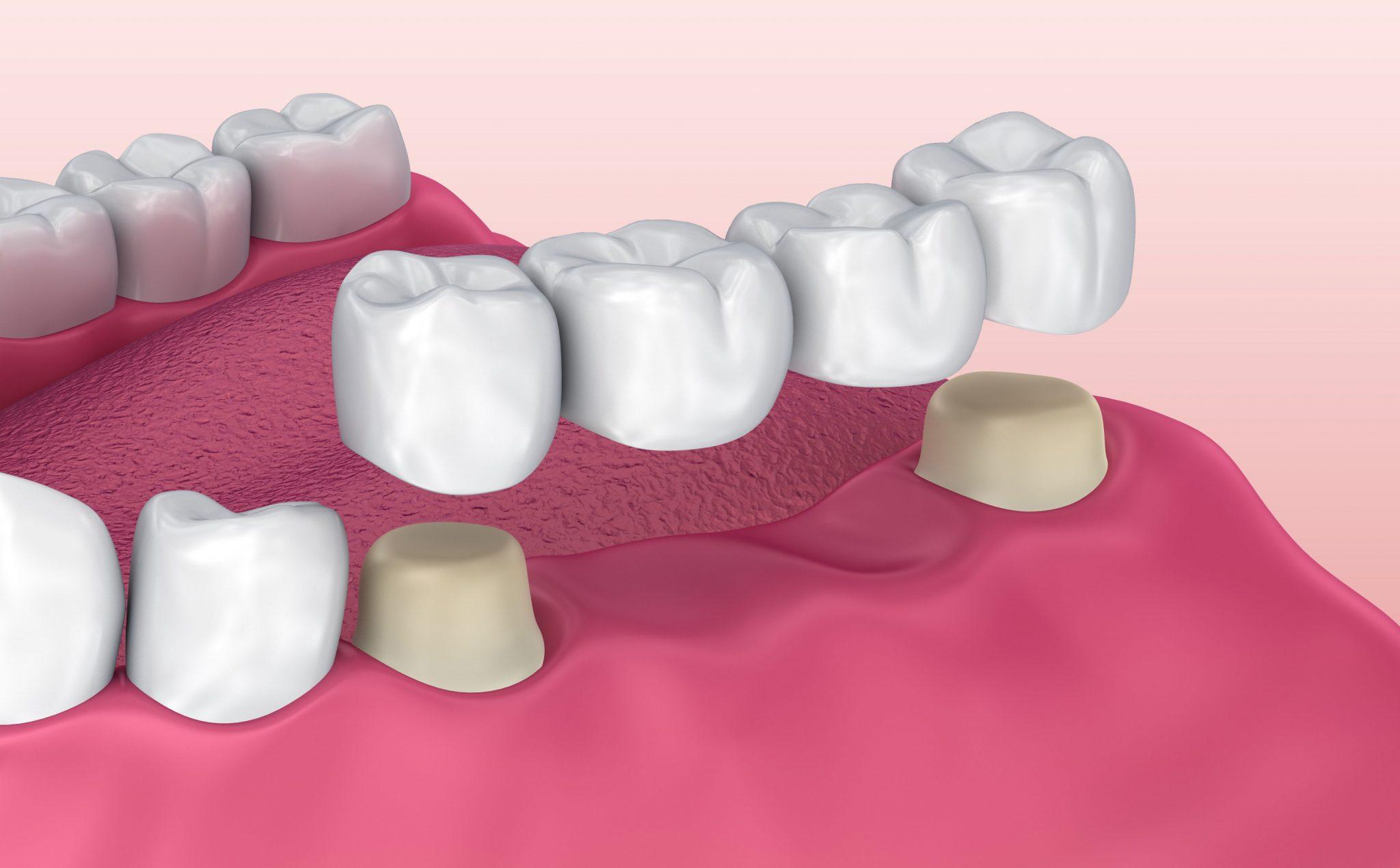 Dental Bridge Santa Monica