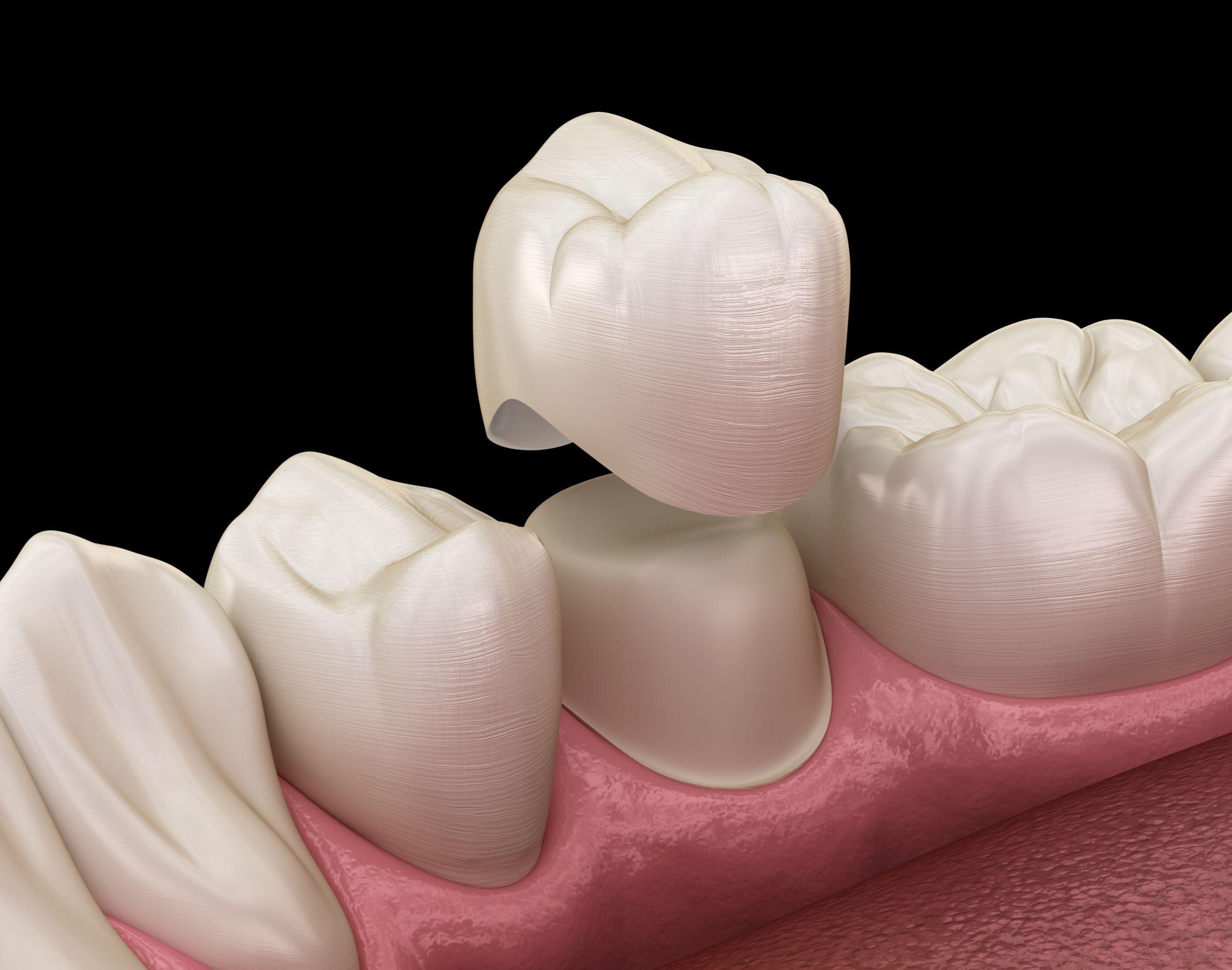 Dental crowns Santa monica