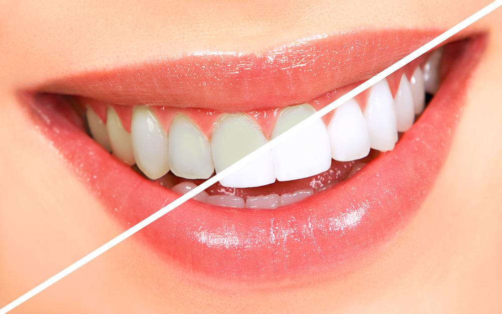 Teeth Whitening Santa Monica