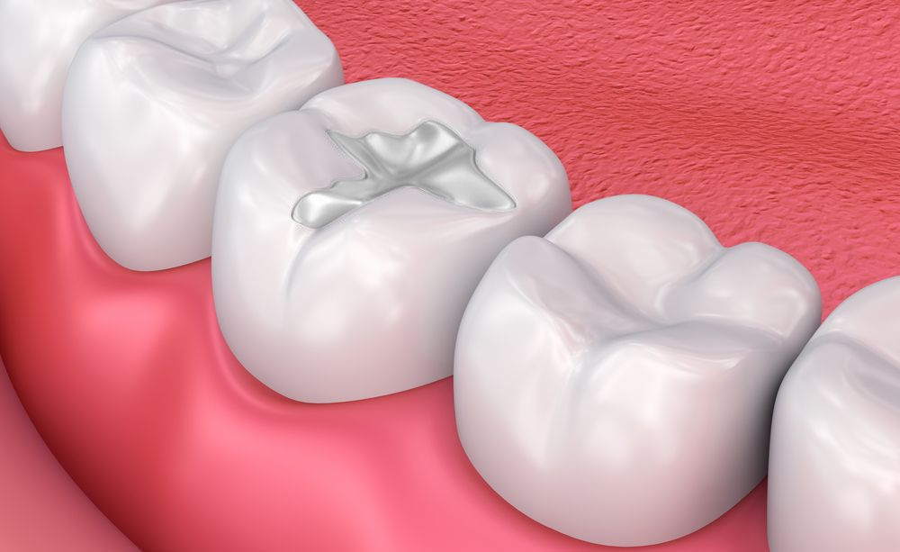 dental fillings Santa Monica