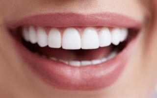 Teeth LUMINEERS